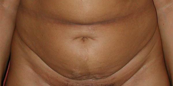Before-Abdominoplastie